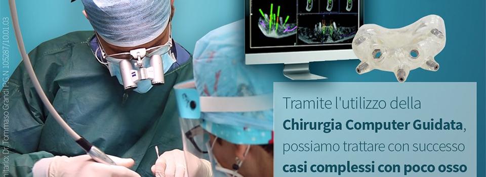 La Chirurgia Computer Guidata