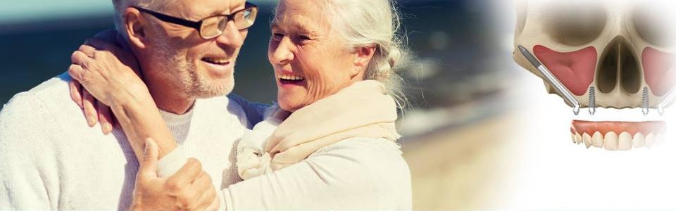 Hai poco osso? Il nostro centro odontoiatrico è in grado di offrire trattamenti con gli impianti zigomatici