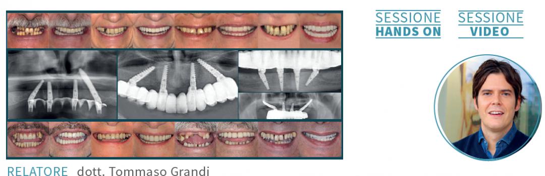 26 GENNAIO 2019 – MODENA – Il dott. Tommaso Grandi terrà un corso avanzato sulla riabilitazione full arch con impianti tiltati, impianti trans sinusali e chirurgia guidata.